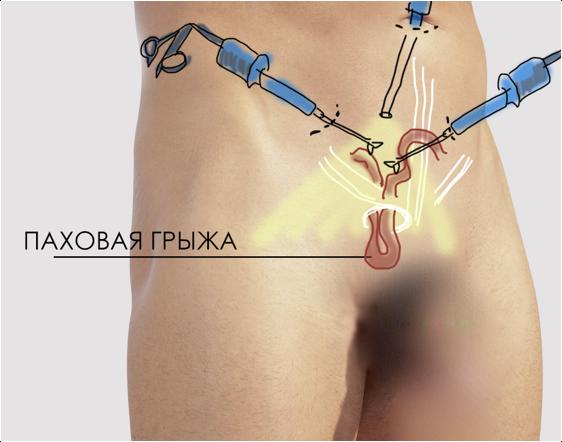Аденома простаты - медикаментозное лечение